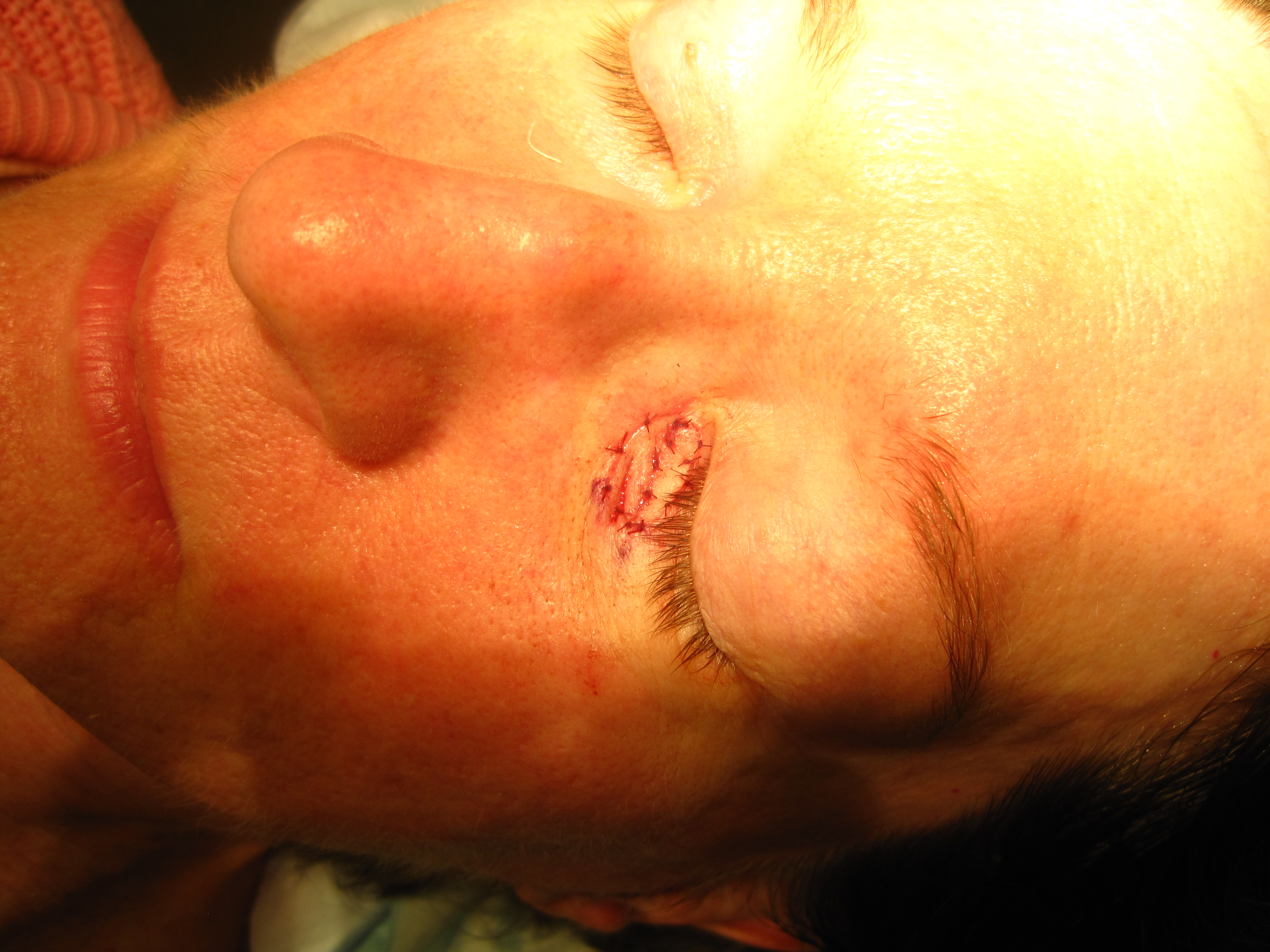 Skin Grafted to Fabric Full Skin Graft Directly After